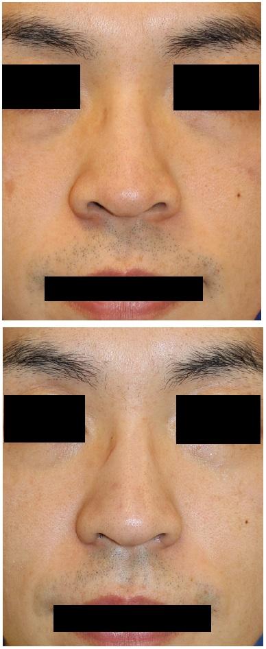 レーザー鼻尖縮小術、小鼻縮小術 術後約半年_d0092965_1443230.jpg