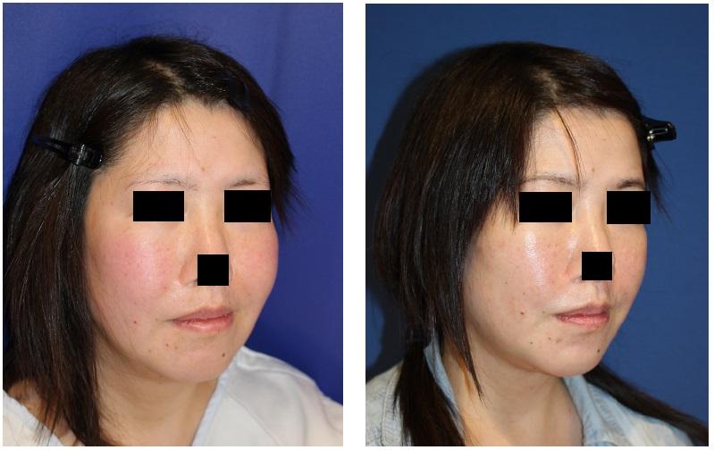 頬ベイザー脂肪吸引、 ほうれい線剥離術 術後約半年_d0092965_282977.jpg