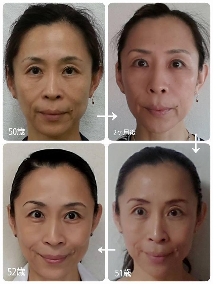 顔の変化 2年間_a0105740_14590239.jpg