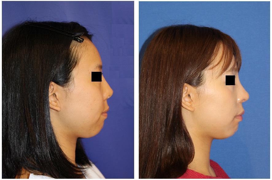 他院鼻プロテーゼ術後入れ替え,鼻孔縁拳上術,鼻尖縮小,鼻中隔延長術 、術後3カ月 下から見た鼻のキズ_d0092965_4592395.jpg