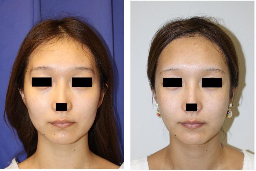 頬骨V字骨切術、エラ骨骨切術、バッカルファット摘出術 術後約3か月_d0092965_2483284.jpg