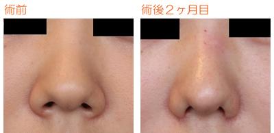 小鼻縮小 術後2ヶ月目_c0193771_17153042.jpg