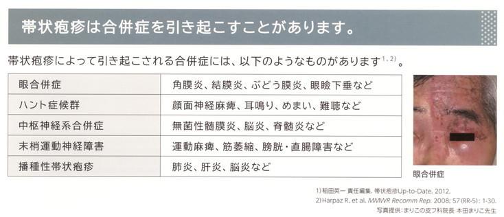2017年8月教室 『帯状疱疹予防ワクチン』_c0219616_17403290.jpg