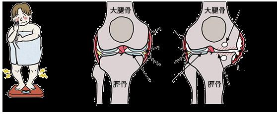 変形性膝関節症 その2 原因・病態_a0296269_09260791.png