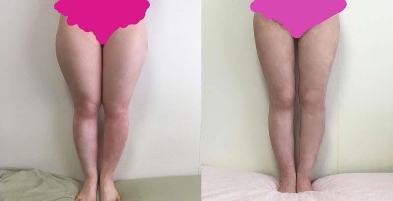 太もも脂肪全周脂肪吸引、ふくらはぎベイザー脂肪吸引 術後約1年   臀部ベイザー脂肪吸引 術後約3カ月 患者さんからの経過報告写真_d0092965_03503523.jpg