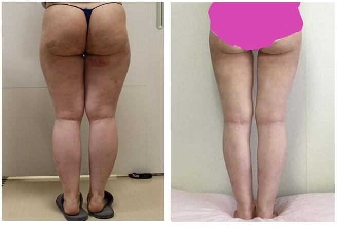 太もも脂肪全周脂肪吸引、ふくらはぎベイザー脂肪吸引 術後約1年   臀部ベイザー脂肪吸引 術後約3カ月 患者さんからの経過報告写真_d0092965_04001096.jpg