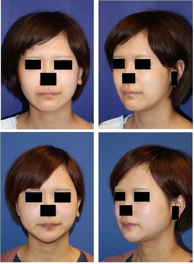 顎骨Vライン形成術(スティック骨切術)、ベイザー顎下脂肪吸引_d0092965_04353698.jpg