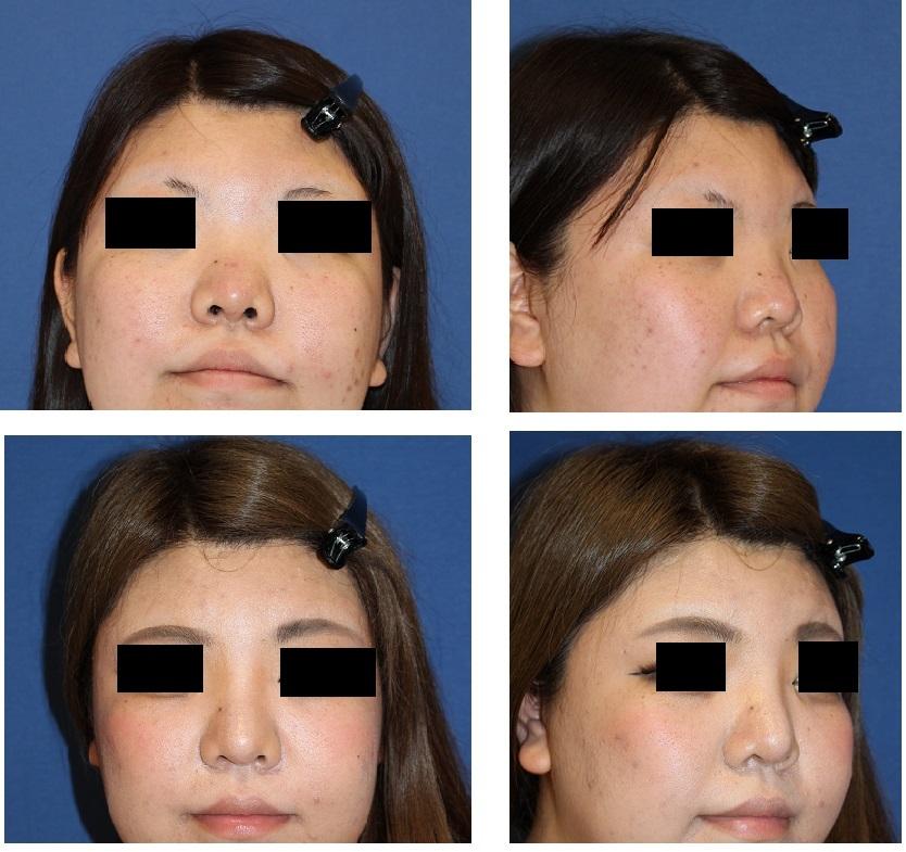 ハイブリッドプロテーゼ隆鼻術 術後約半年再診時_d0092965_05353272.jpg