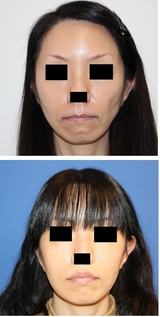 頬脂肪移植 術後約半年   口角拳上術(内側法)術後約2か月 再診時_d0092965_03360486.jpg
