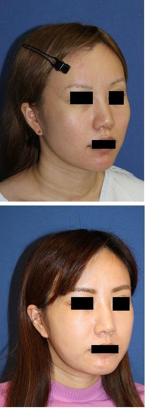 頬骨前側法削り 術後約4年再診時_d0092965_04041597.jpg