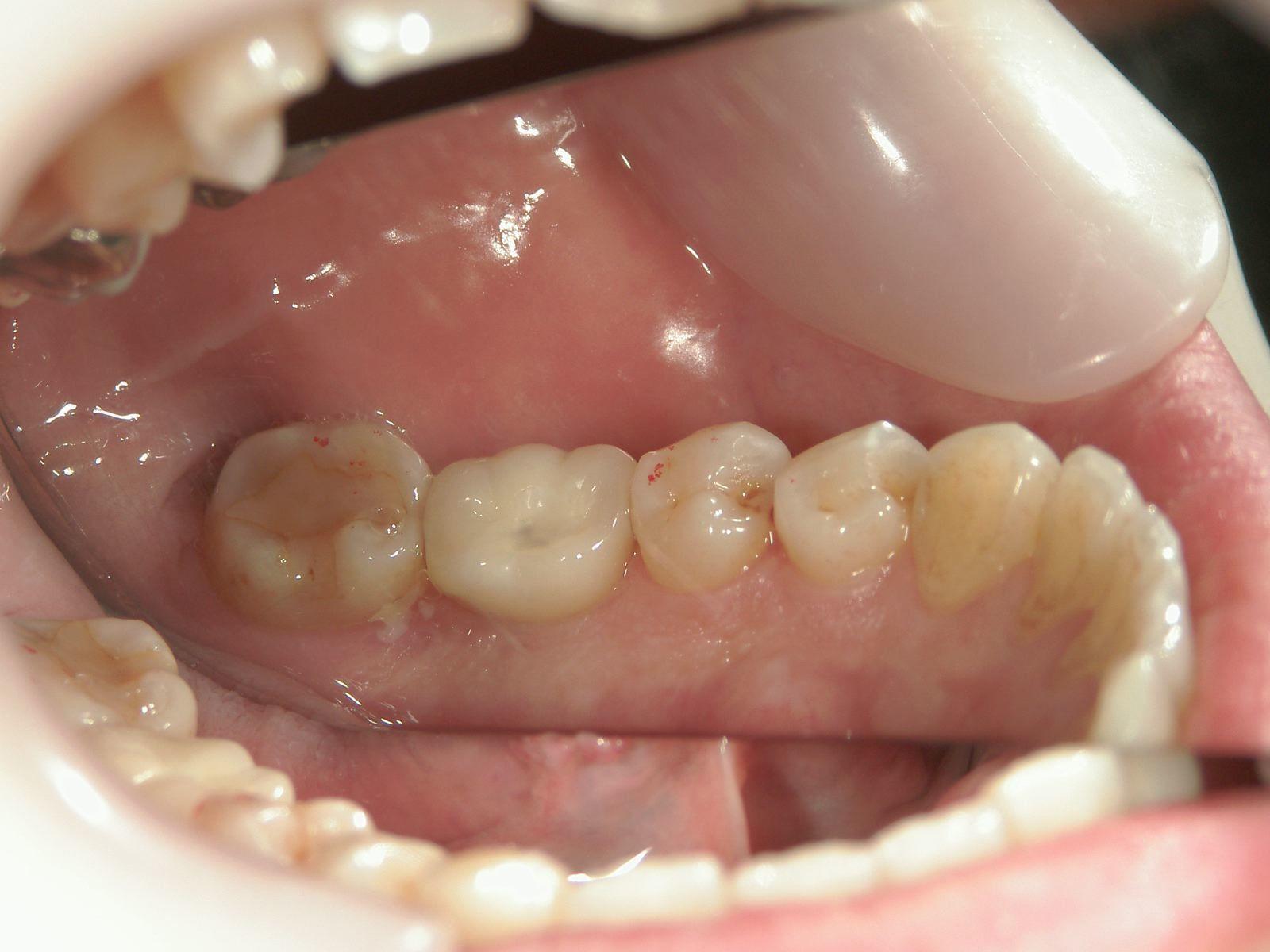 インプラント再考・9 両方の歯を削らない!1本からのインプラント・・・_b0119466_23135209.jpg