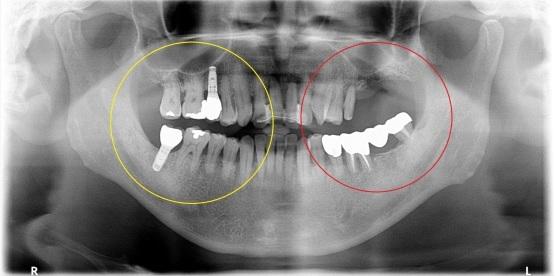 インプラント再考・9 両方の歯を削らない!1本からのインプラント・・・_b0119466_00033577.jpg