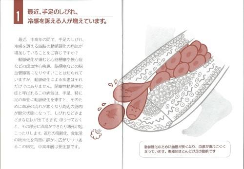 タバコで閉塞性動脈硬化症、特に50以上の男性_c0338136_22082905.jpeg