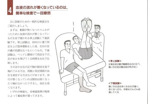 タバコで閉塞性動脈硬化症、特に50以上の男性_c0338136_22083025.jpeg