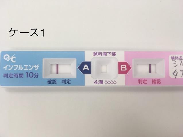 インフルエンザ流行中_b0377610_22111160.jpg
