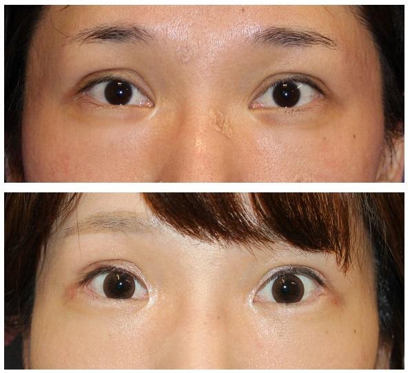 蒙古ひだ形成術、 目の下のたるみ取り、 眼窩脂肪移動術術後約1年半_d0092965_03492977.jpg