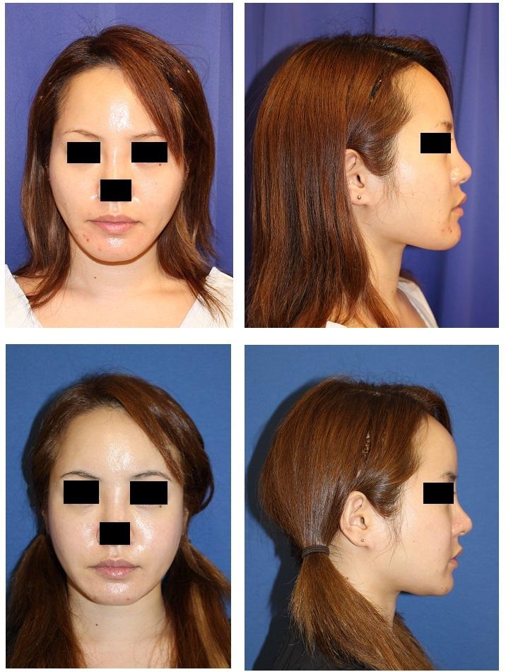 下顎骨スティック骨切術 術後1年5か月、 額、こめかみ、頬脂肪移植 術後1年再診時_d0092965_05111603.jpg