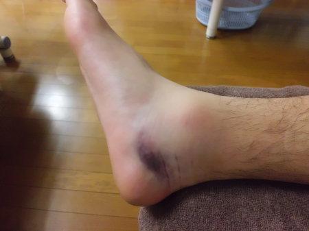 足関節内側にある三角靭帯損傷_e0096277_19495960.jpg