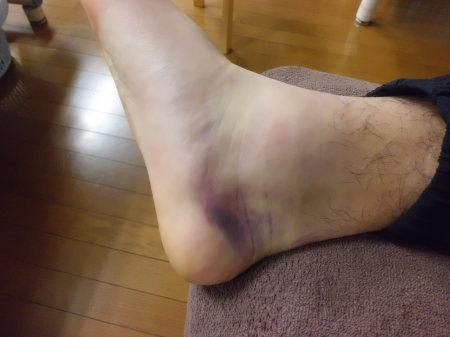 足関節内側にある三角靭帯損傷 2_e0096277_16145658.jpg