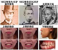 日本の支配層の構造:3人の天皇と縄文5系統「政府委員」のジイサマ_e0069900_23551682.jpg