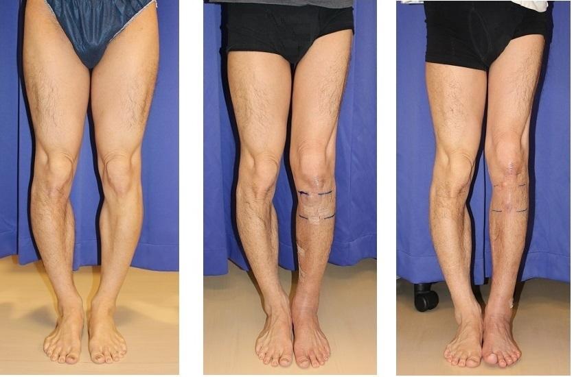 左下腿 脚延長  precice(プリサイス)  術後約3カ月  _d0092965_03462983.jpg