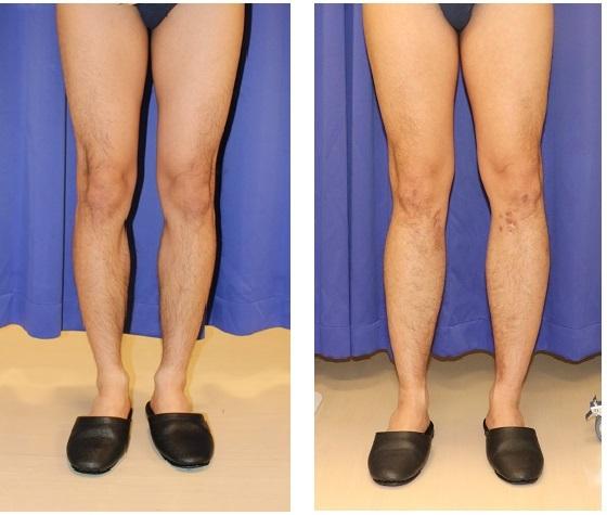 脚延長術 (ディバスティアーニ変法) 初回手術から約2年後_d0092965_04281844.jpg