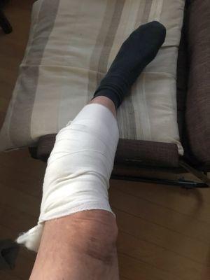 手術 下肢静脈瘤 その2_a0163788_20051696.jpg