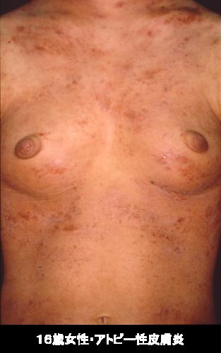 2018年4月教室 『アトピー性皮膚炎の新治療薬:デュピクセント』_c0219616_11173699.png