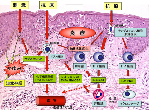 2018年4月教室 『アトピー性皮膚炎の新治療薬:デュピクセント』_c0219616_11173718.png