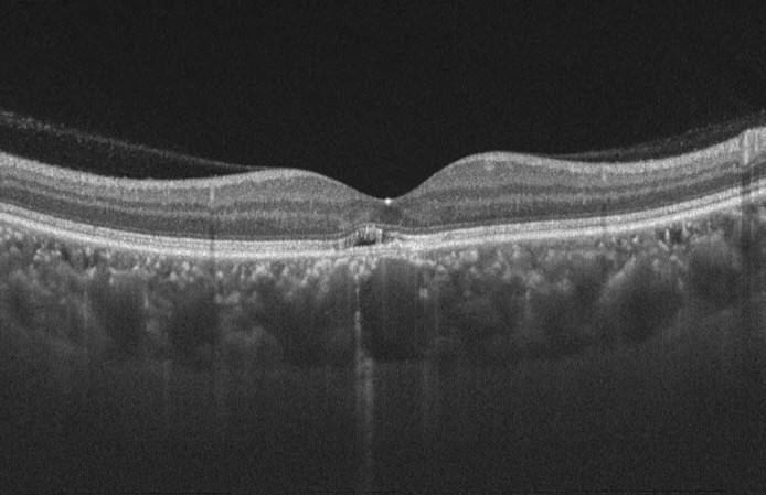 第122回 日本眼科学会 その8 サブスペシャリティーサンデー1 (1055)_f0088231_09421841.jpg