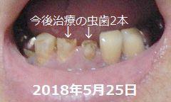 d0051601_20503484.jpg