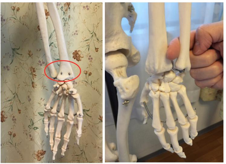 手首が辛い方、骨盤を整えてみませんか?(その2)〜ある日の施術より〜_e0073240_08322466.jpg