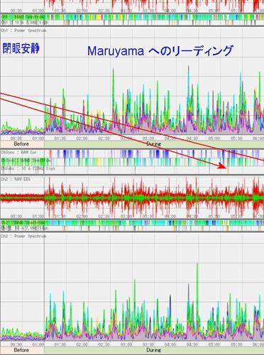 脳波研究の第一人者である志賀工学博士に脳波を測定していただきました(1)_d0169072_16014647.jpg