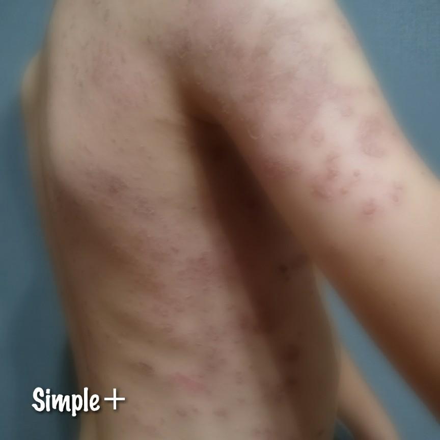 カポジ 水痘 様 発疹 症 再発
