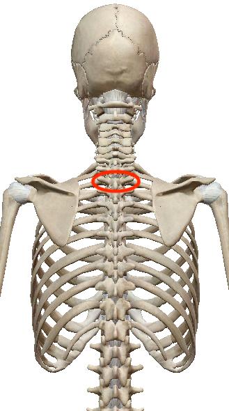 首こり・肩こり調整は、凝っていないところを見つけるのがポイントです 〜ある日の施術より〜_e0073240_11300549.jpg