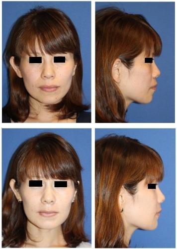 上下顎セットバック(上下顎歯槽骨区域骨切後方移動術):突き出た口元の改善_d0092965_04563540.jpg