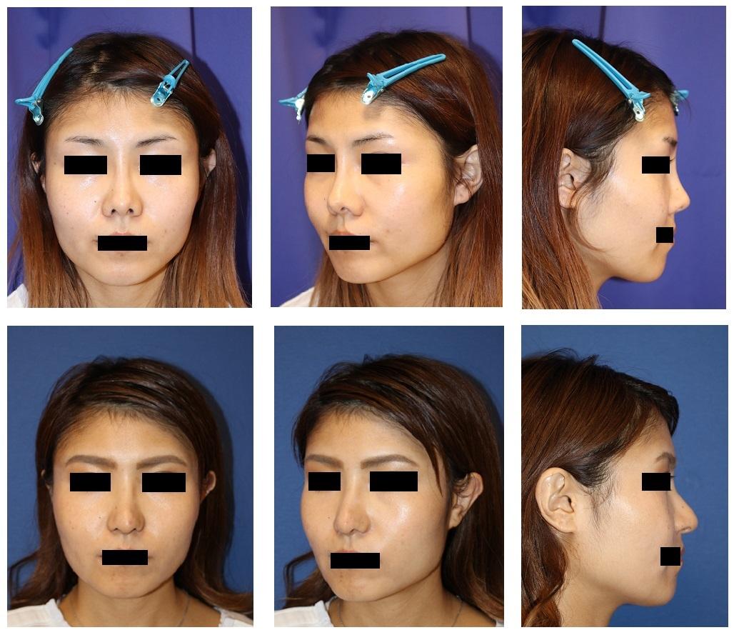 他院鼻プロテーゼ抜去術、鼻尖縮小(クローズ法)、鼻中隔延長術、鼻孔縁挙上術、鼻孔縁延長術、婦人科軟部組織移植術_d0092965_08015633.jpg