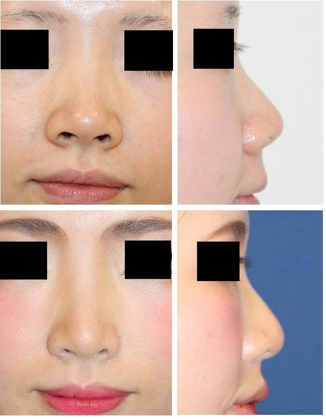 鼻尖縮小術(クローズ法)、小鼻縮小術、鼻尖部軟骨移植術 術後約1年再診時_d0092965_02372309.jpg