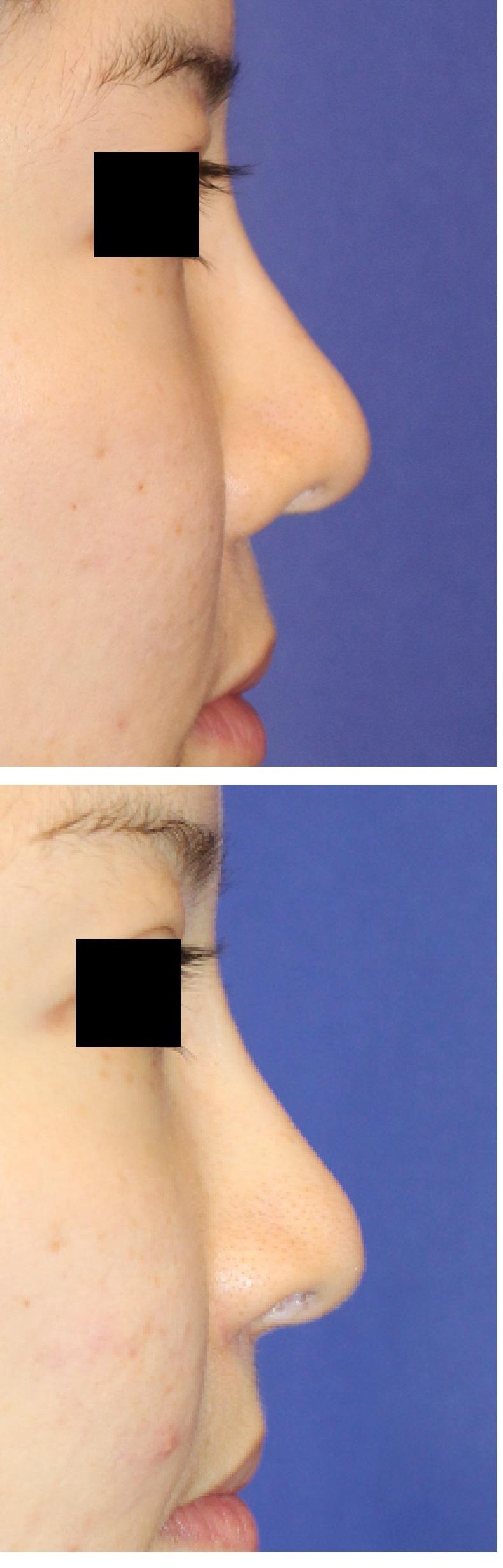 鼻口唇角形成術、鼻柱下降術、鼻孔縁挙上術 術後半年_d0092965_05042799.jpg