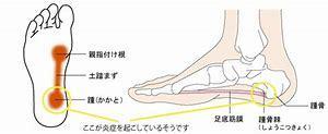 あなたの足の痛みの原因は?足のトラブルと運動_b0179402_12100328.jpg