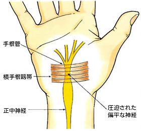 手根管症候群・・・頚椎症?_e0097212_17543151.jpg