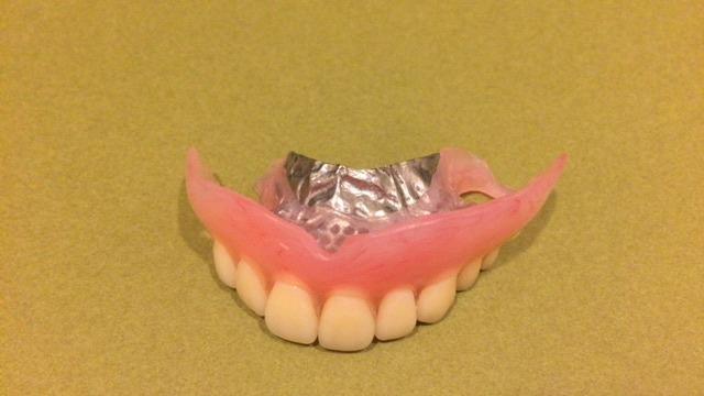 金属が目立たない義歯_b0184294_17523726.jpg