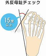 あなたの足の痛みの原因は?足のトラブルと運動_b0179402_13000110.jpg