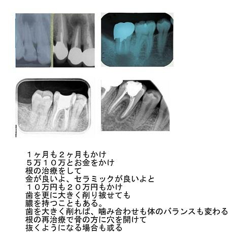d0338857_04202906.jpg