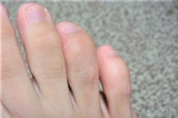 足 の 小指 ヒビ 放置