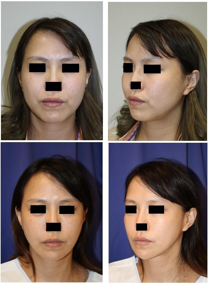 下顎骨下縁骨切術(下顎骨スティック骨切術),下顎骨外板外し  術後約8か月年_d0092965_06272669.jpg