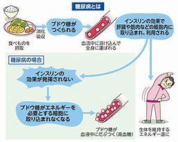 運動不足で糖尿病に…運動が糖尿病リスクを改善します_b0179402_15393185.jpg