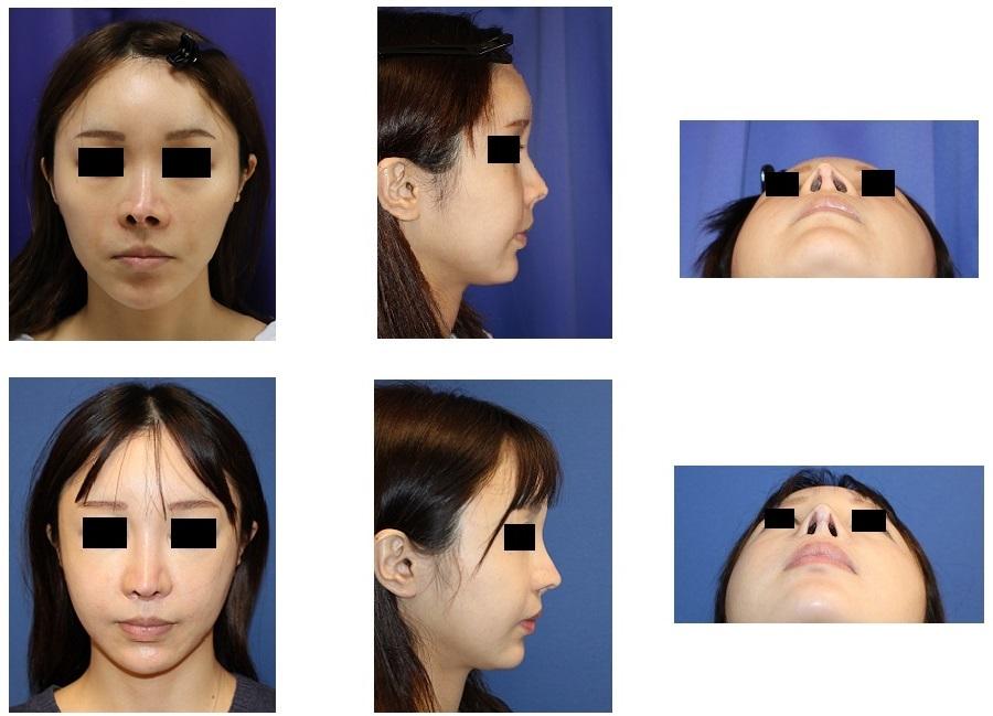 他院複数回(5回)鼻手術術後修正(当院で6回目) : 他院鼻中隔延長術後 変形 修正術 +(小鼻縮小、鼻孔縁延長、鼻プロテーゼ入れ替え、婦人科軟部組織移植)_d0092965_04213520.jpg