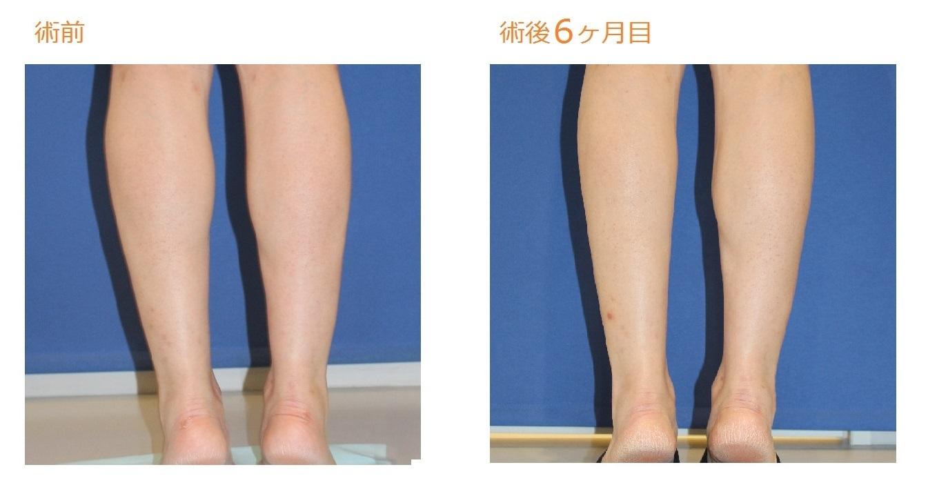 フクラハギを細くする手術(LDDN法) 術後6ヶ月目_c0193771_10311060.jpg