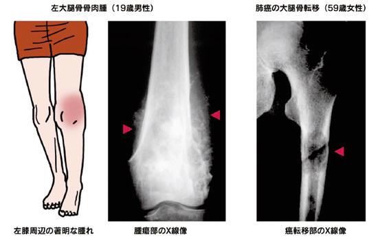 悪性骨腫瘍 その1 症状_a0296269_08345173.jpg